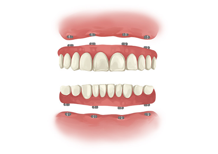 Dental Implants Full teeth implants