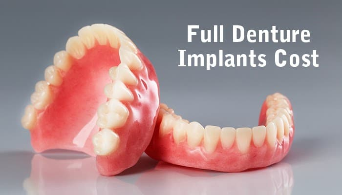 Full Denture Implants Cost - CID
