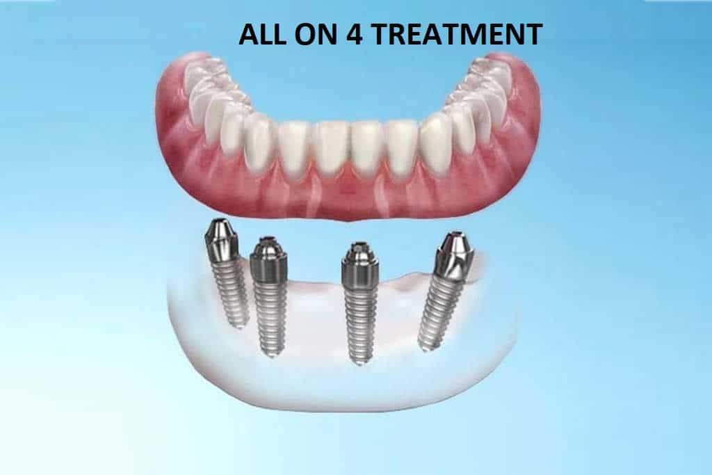 All on 4 Treatment - CID